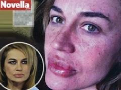 Le migliori pillole di acne ormonali